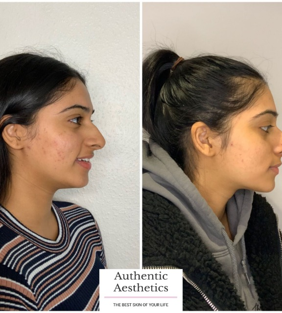 before-and-after-a-course-of-innopen-and-microneedling.png