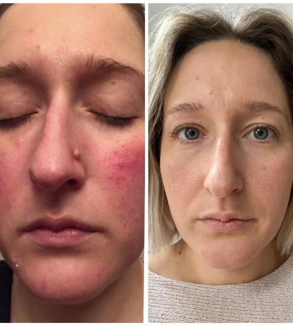 before-and-after-using-zo-skin-health-rosacea-protocol.png